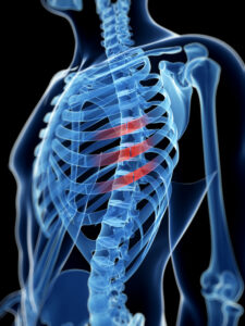 Rib Injury Broken Ribs Accident Injury Lawyer