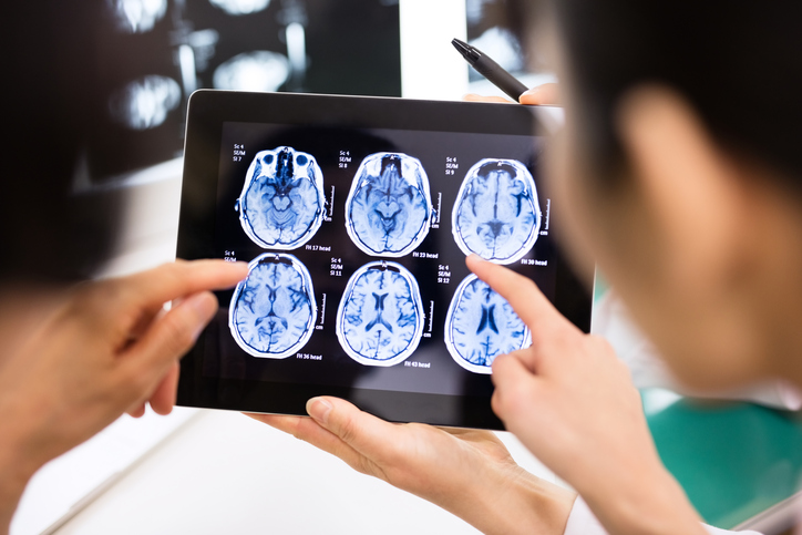 Diagnose Brain Injury After a Car Accident