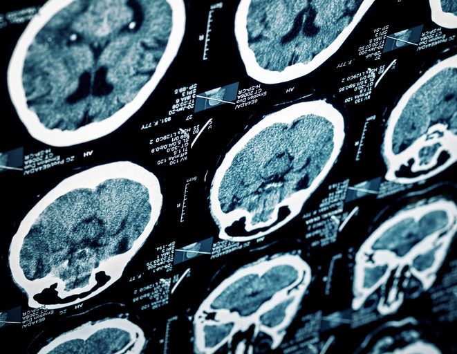 The Cost of Recovering From Brain Injury After a Car Accident